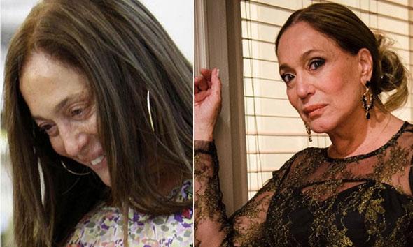 celebridades-nacionais-sem-maquiagem-12-susana-vieira